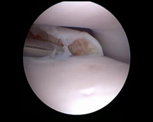 Arthroscopie du coude d'un chien - Dysplasie du coude - Processus coronoide