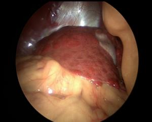 Coelioscopie chez un chien présentant des nodules hépatiques - La biopsie permet de diagnostiquer une hépatite nécrosante extensive et d'écarter une cause tumorale