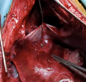 Shunt intra-hépatique chez un chien - chirurgie vétérinaire Marseille