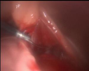 Péricardectomie palliative sous thoracoscopie - Chien